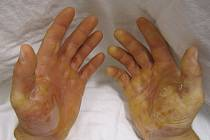 Epidermolysis bullosa. Ilustrační snímek.