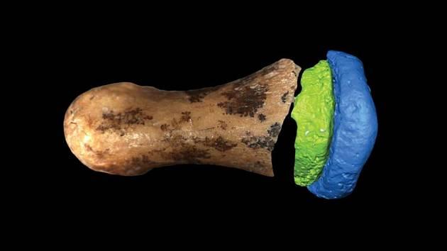 Kost z prstu denisovana, kde k dříve objeveným fragmentům (znázorněným barevně) přibyl nově identifikovaný článek