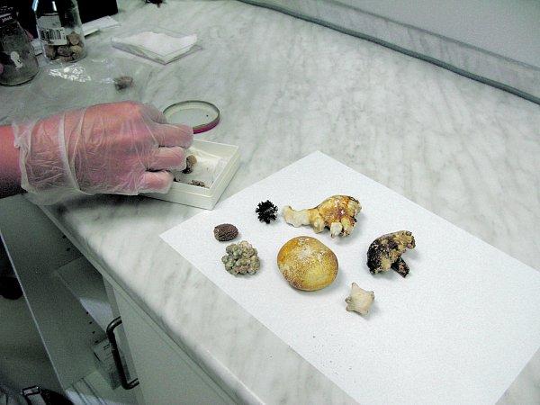 Své prozradí imočové kameny, jejichž složení lékaři řekne, jakou má pacientovi nasadit dietu.