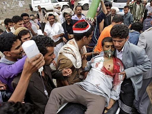 Při bojích v Saná v noci na čtvrtek zahynulo 16 lidí. Podle zdravotníků citovaných agenturou AFP je mezi nimi i sedmiletá holčička. V jemenské metropoli se stupňují střety mezi vládními jednotkami a opozičními kmeny.