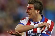 Zraněný Mario Mandžukič z Atlétika Madrid v zápase s Realem.