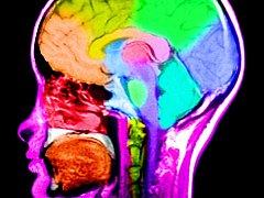 RESTARTOVÁNÍ MOZKU. I kdyby se nepodařilo klinicky mrtvé pacienty oživit, přinese výzkum pokrok v léčbě Alzheimerovy a Parkinsonovy choroby, věří američtí vědci.