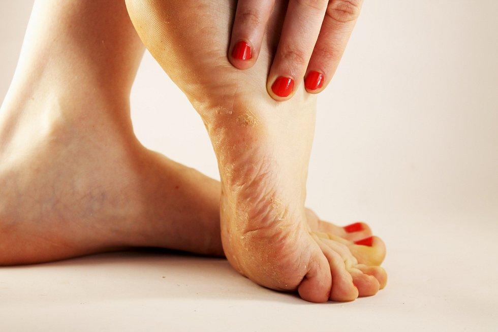 Zarudnutí a svědění, olupující se kůže a mokvající místa, která mohou být bolestivá – tak se projevuje právě plíseň