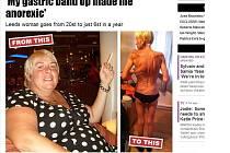 Jednapadesátiletá Britka Julia Dunbarová z Leedsu se poté, co se rozhodla radikálně zhubnout, ocitla na pokraji života a smrti.