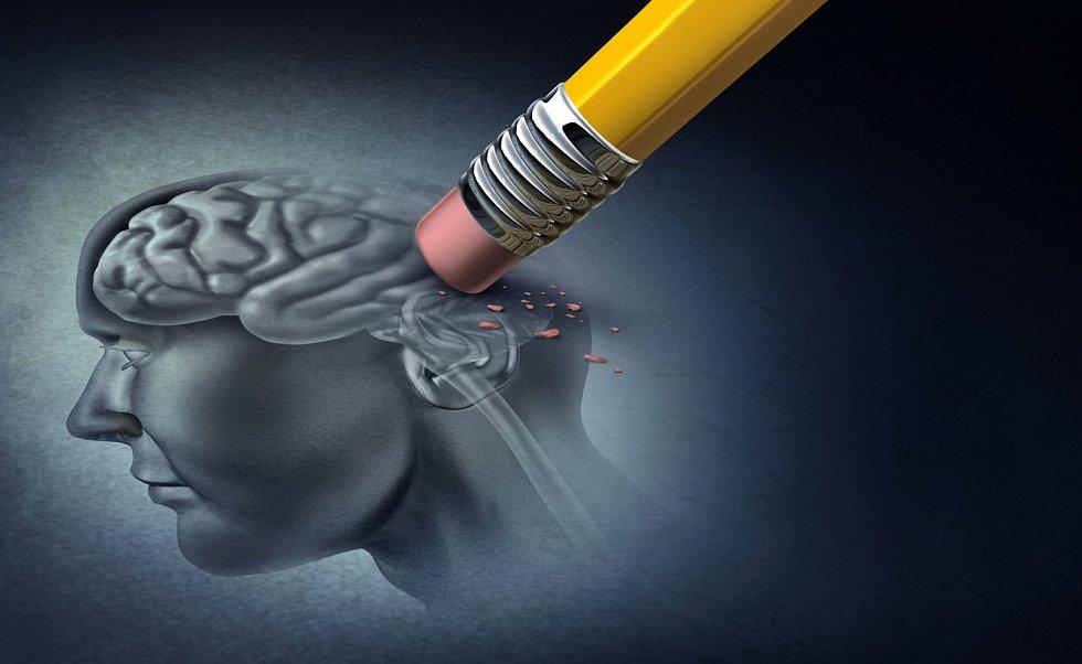 Alzheimerova choroba. Ilustrační snímek
