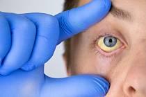 Virus může zapříčinit jak akutní, tak chronickou infekci.