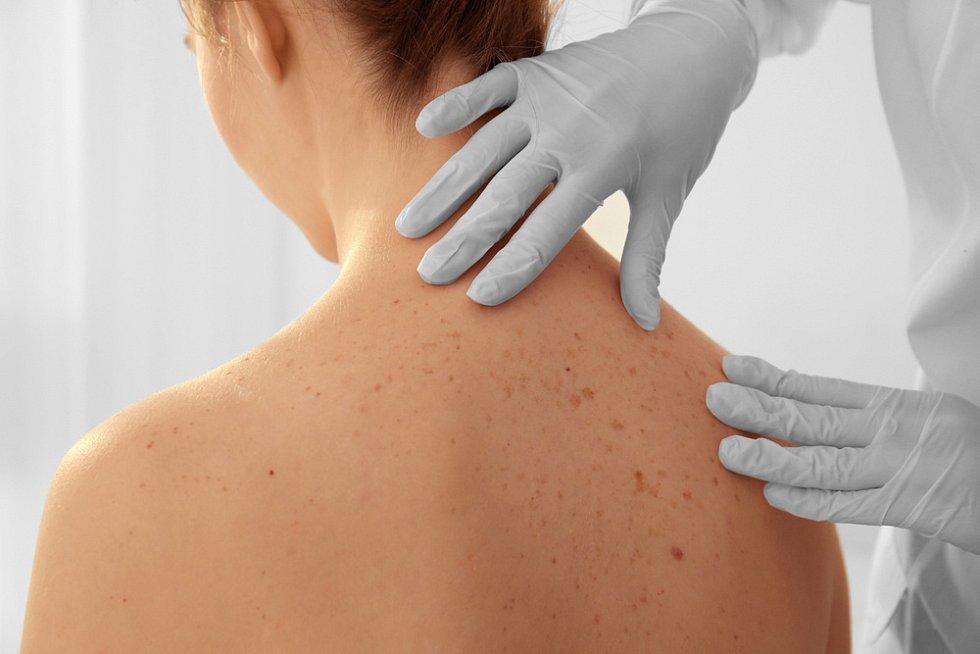 Zhoubný kožní nádor většinou zpočátku vypadá jako nenápadná skvrnka, později ale může růst hlouběji a vytvářet metastázy vjiných orgánech.