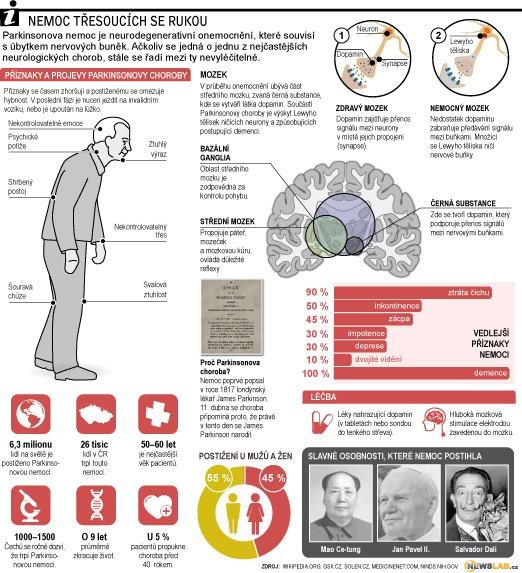 Parkinsonova nemoc - nemoc třesoucích se rukou