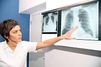Plicní embolie - Ilustrační foto