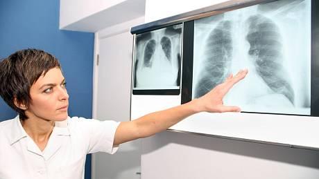 Nemoc covid-19 může na plicích zanechat následky.