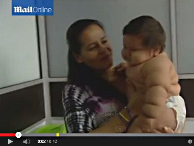 Osmiměsíční chlapec Santiago Mendoza z kolumbijské Codazzi váží jako šestileté dítě, kvůli těžké obezitě mu tak hrozí choroby, jakými trpí staří lidé.