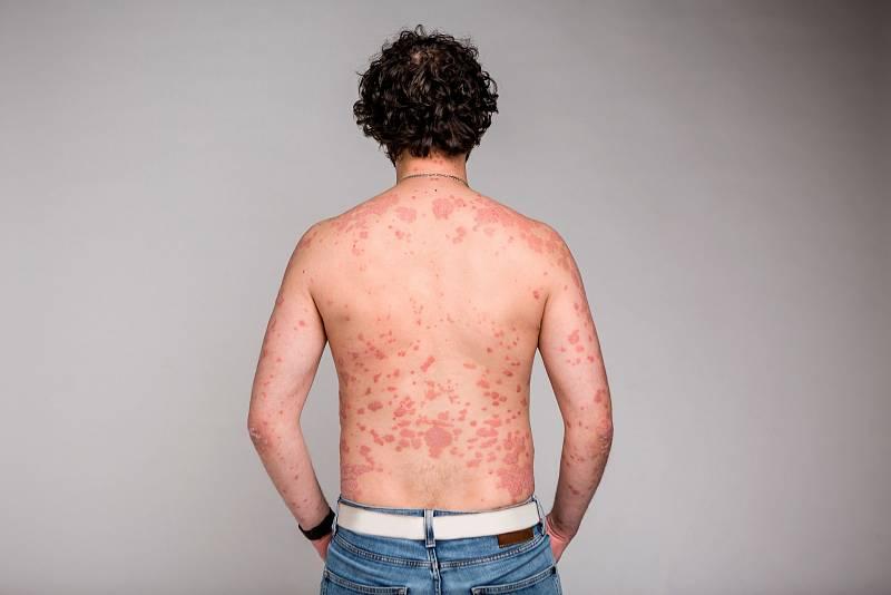 Až 30 % osobslupénkou se potýká také spsoriatickou artritidou.