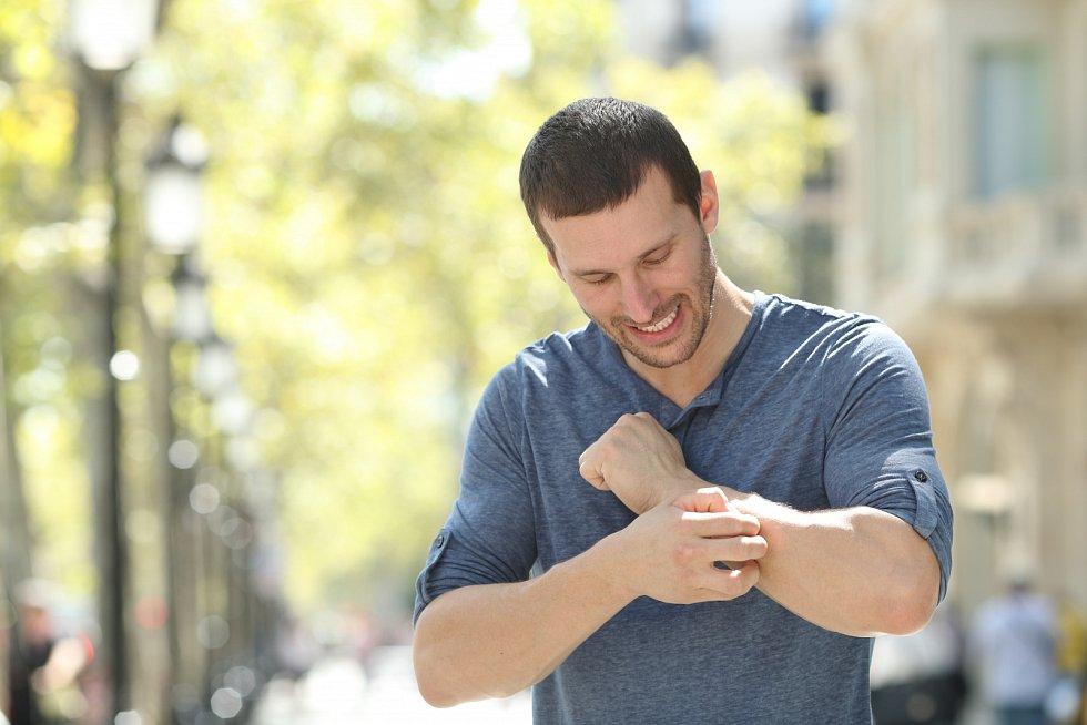 Okolo 40 % osob, u kterých propukne psoriatická artritida, má vrodině někoho spsoriázou nebo psoriatickou artritidou.