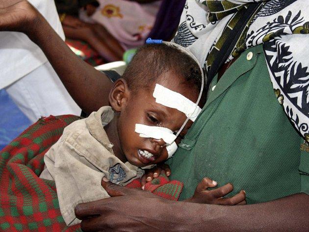UNICEF odhaduje, že 130 000 etiopských dětí trpí vážnou podvýživou a dalším 6 milionům dětí toto nebezpečí hrozí kvůli suchu.