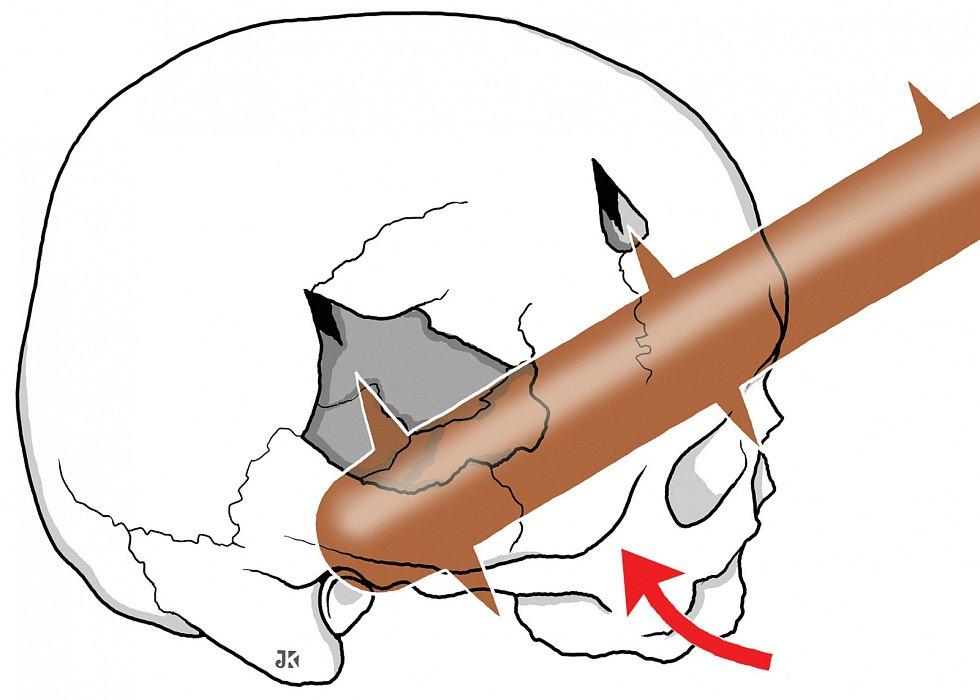 Kresebná rekonstrukce poranění lebky cepem od Jana Kacvinského z Anatomického ústavu 1. LF UK.