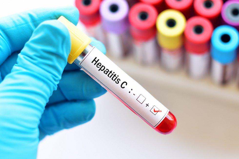 Léčba hepatitidy C je dostupná ve specializovaných centrech ČR.