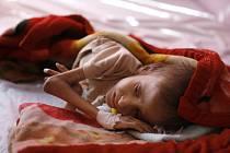 Vysoký komisař OSN pro lidská práva Zaíd Husajn dnes varoval, že v Sýrii by mohly zemřít hladem tisíce obyvatel obléhaných oblastí. Ilustrační foto.