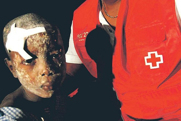 První odhady počtu obětí zemětřesení na Haiti se pohybovlay v řádu stovek či tisíců, teď už jdou do statisíců. Tento malý Haiťan měl při úterní tragédii štěstí.