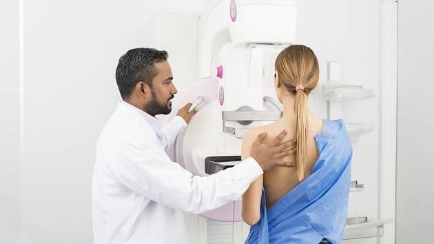 Vyšetření na mamografu - Ilustrační foto