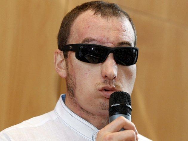Polák Grzegorz má transplantovaný obličej.