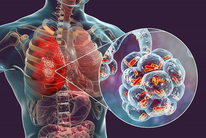 Pneumokok je jedním z nejčastějších původců zápalů plic a respiračních infekcí
