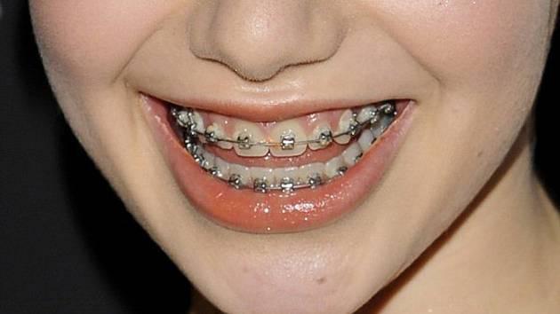 Zuby - rovnátka - ilustrační foto