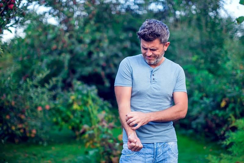 Psoriatická artritida může se objevit kdykoliv, ale nejčastěji se tak děje vpubertě a pak mezi 35–50 lety, jak u mužů, tak u žen.