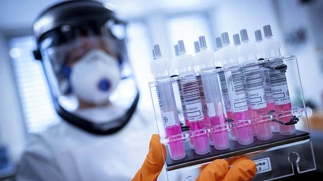 Pracovník laboratoře v Halle připravuje kontrolní vzorky na testování na koronavirus