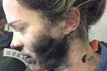 Takto dopadla mladá Australanka, které vybuchla v letadle sluchátka.