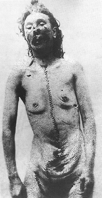 Policejní fotografie těla Catherine Eddowesové