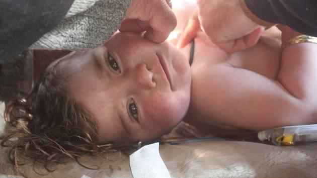 Zraněné děti po útoku v Sýrii