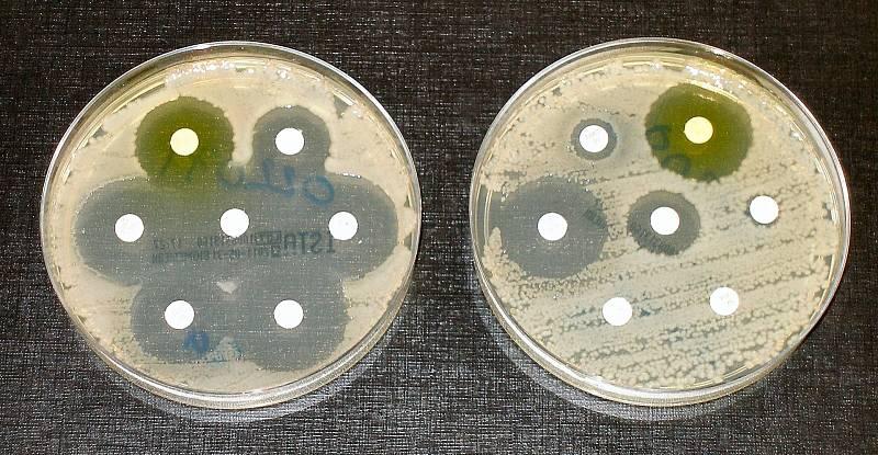 Jeden z testů rezistence na antibiotika. Candida auris patří bohužel k multirezistentním, ilustrační foto