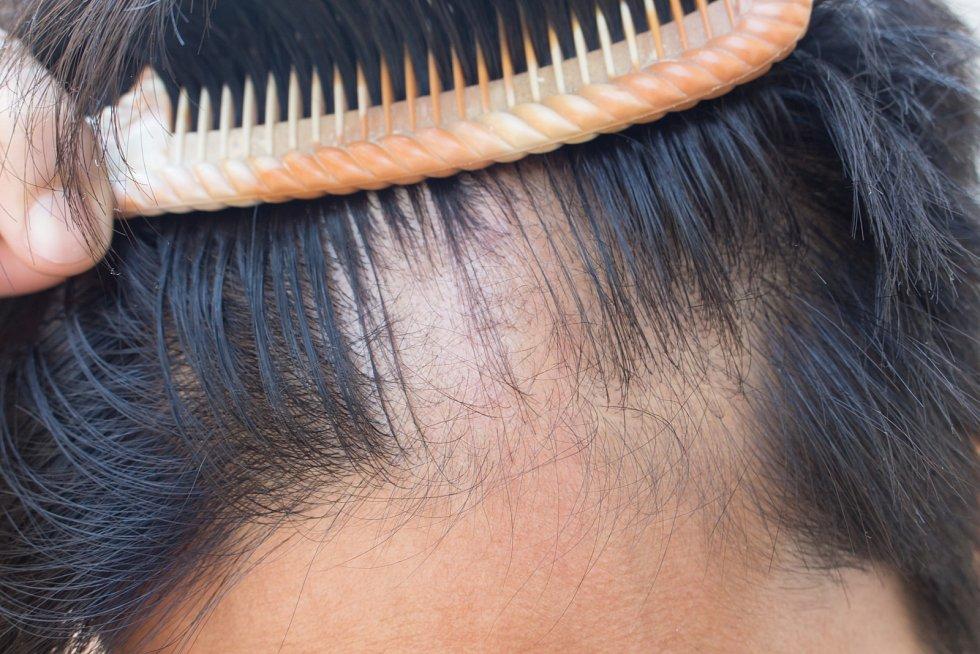 Na léčbu alopecie areaty prostřednictvím moderních léků se zaměřují lékaři vCentru Zdravý vlas na Dermatovenerologické klinice Fakultní nemocnice Královské Vinohrady v Praze.