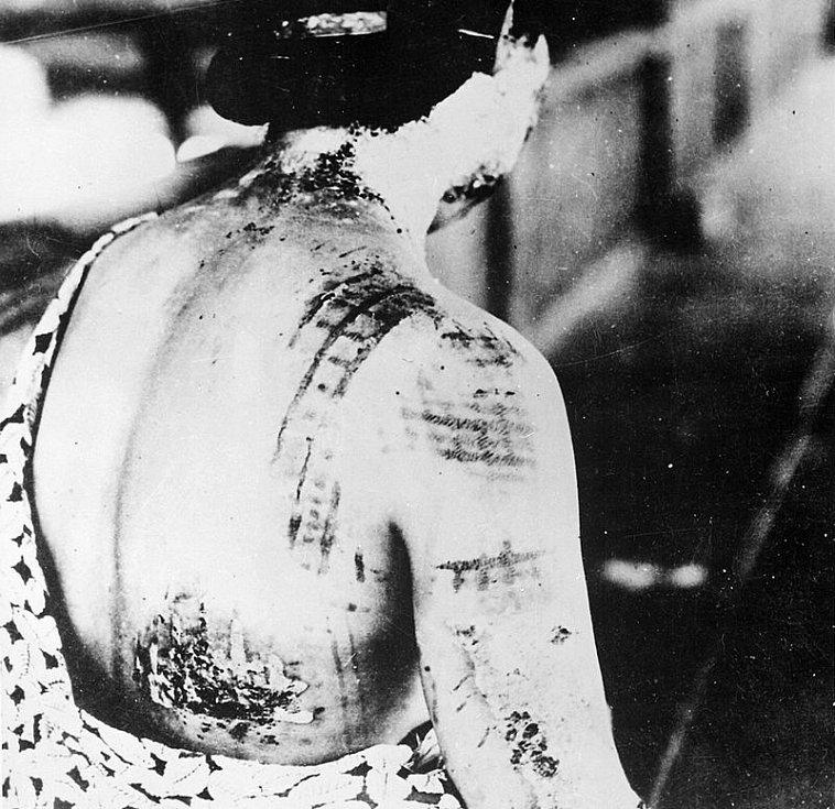 Oběť výbuchu jedné z jaderných bomb nad Japonskem. Výbuch vypálil do její kůže vzor kimona, které měla v okamžiku exploze na sobě