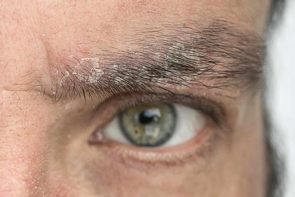 Lupénkou neboli psoriázou trpí v Česku kolem 300 tisíc pacientů