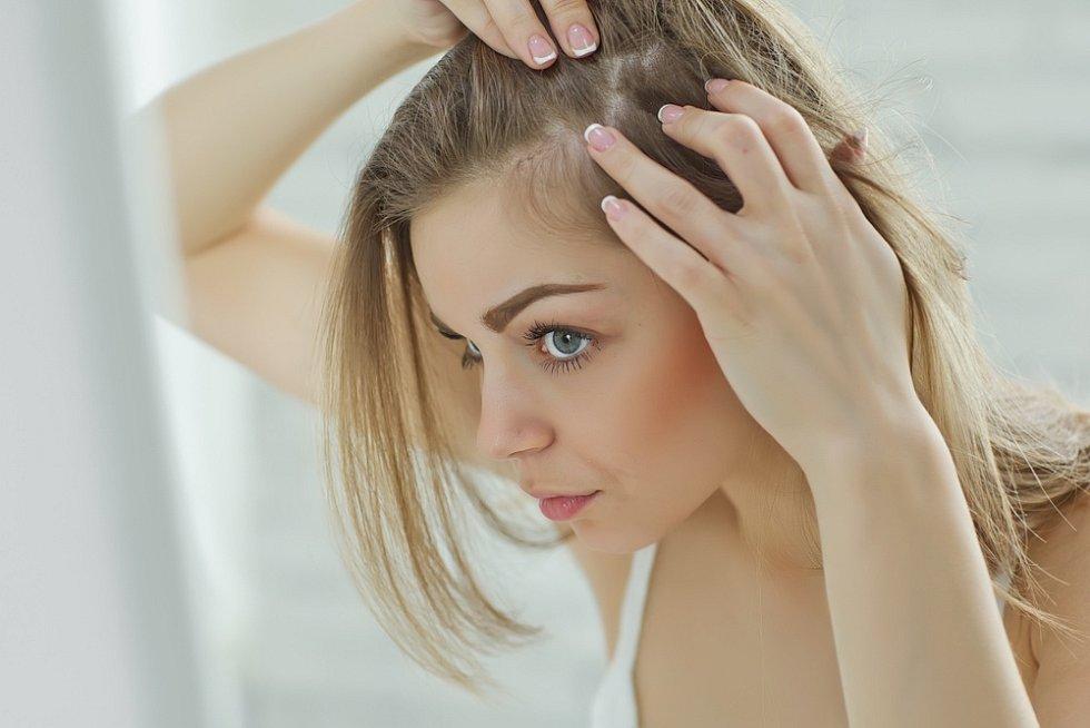 I ženy mohou mít problémy s vypadáváním vlasů.