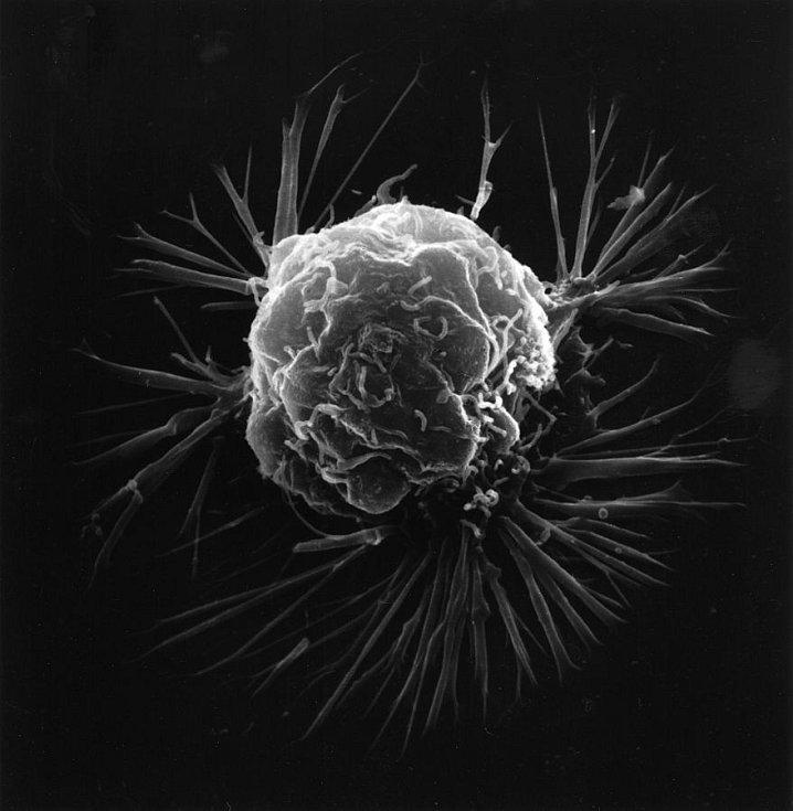 Snímke buňky rakoviny prsu pořízený rastrovacím elektronovým mikroskopem, vytvářejícím trojrozměrné obrazy. Celkový tvar povrchu buňky při vysokém zvětšení