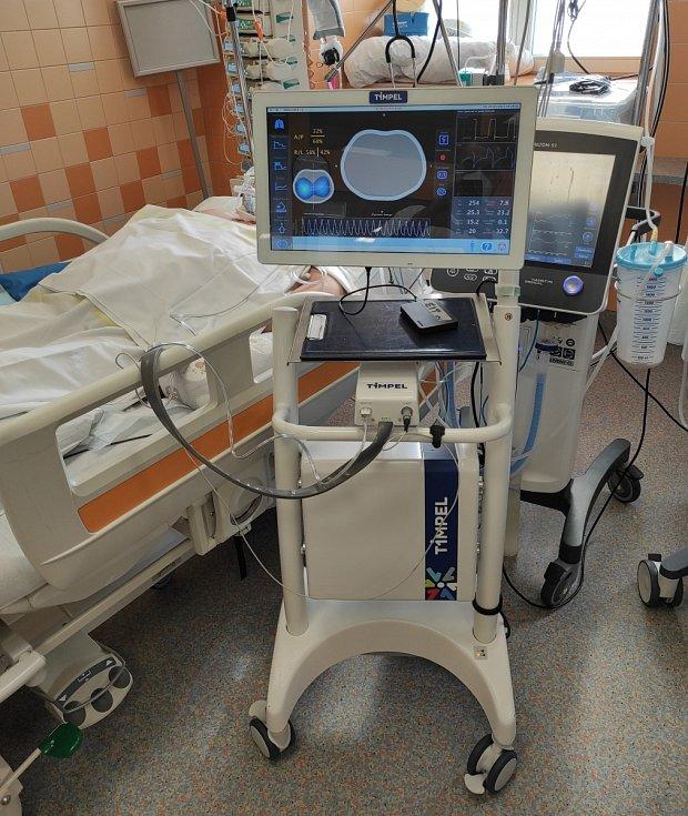 Lékaři slíbené přístroje na skenování plic, které pomohou řídit plicní ventilaci, nedostali. Čekají už od jara.