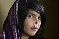Mezinárodní soutěž World Press Photo za rok 2010 vyhrál šokující snímek Afghánky s uříznutým nosem a ušima, který pořídila jihoafrická fotografka Jodi Bieberová.