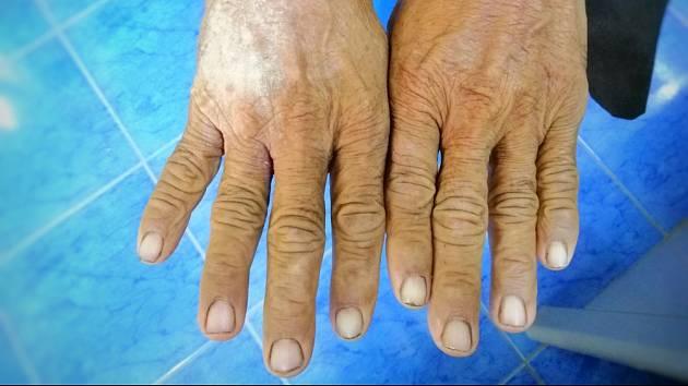 Postižení kůže se zpočátku projevuje zejména na rukou, které otékají, tuhnou a ztlušťuje se na nich kůže. Pokožka působí leskle, je napjatá a tuhá. Na počátku mohou tyto projevy připomínat ranní ztuhlosti při artritidě.