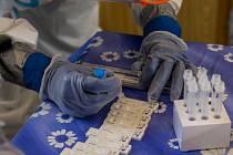 Antigenní testy na covid-19. Ilustrační snímek