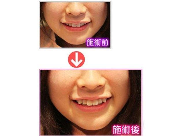 Japonské ženy se hrnou na zubní kliniky, aby si daly přilepit dočasné nebo trvalé umělé špičáky. Takovýto zákrok stojí okolo 390 dolarů.