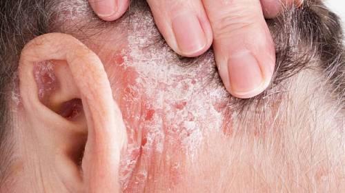 Lupénka není jen kožní onemocnění.