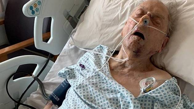 Peter Gouldstone v nemocnici