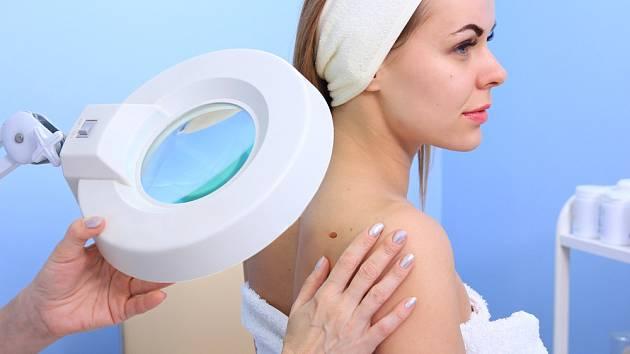 Rozpoznat příznaky melanomu pomáhá tzv. ABCDE test.