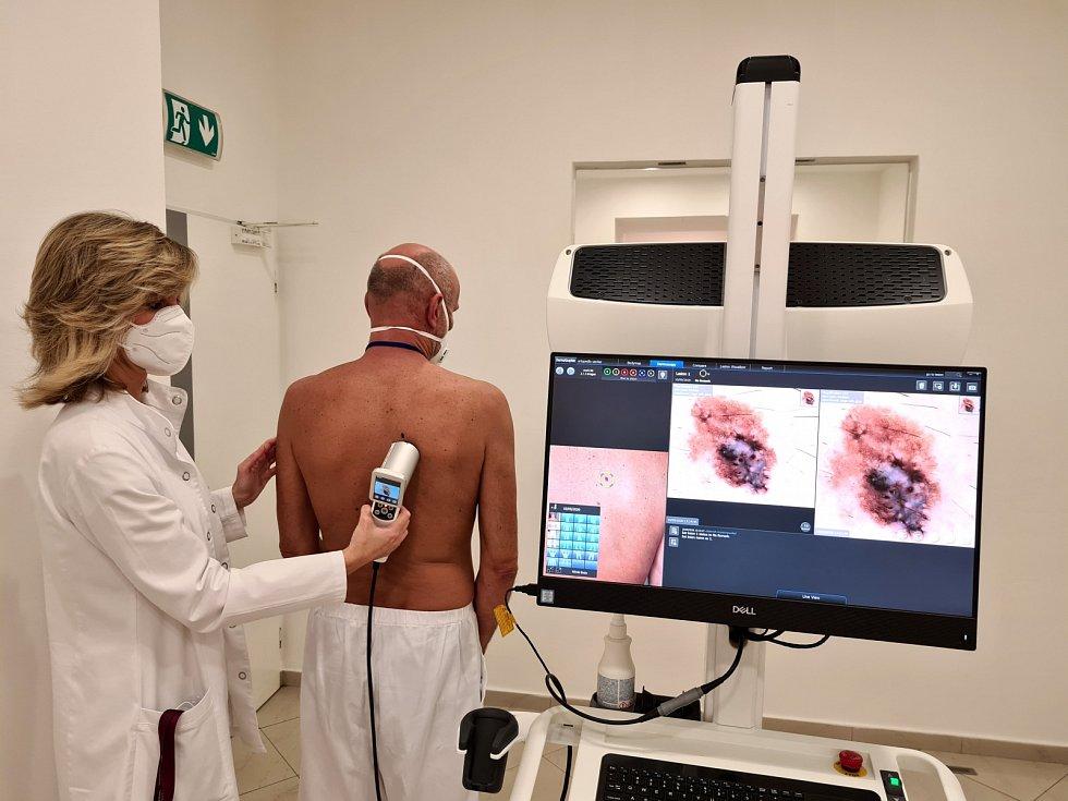 Vyšetření na kožní nádor (melanom)