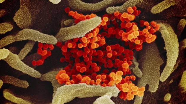 Nový koronavirus SARS-CoV-2 (oranžová barva) ukazuje, jak  vychází z povrchu buněk (zelená barva) na nedatovaném snímku z elektronového mikroskopu, který v únoru 2020 zpřístupnil Americký Národní institut zdraví. Virus dříve označovaný jako 2019-nCoV způs