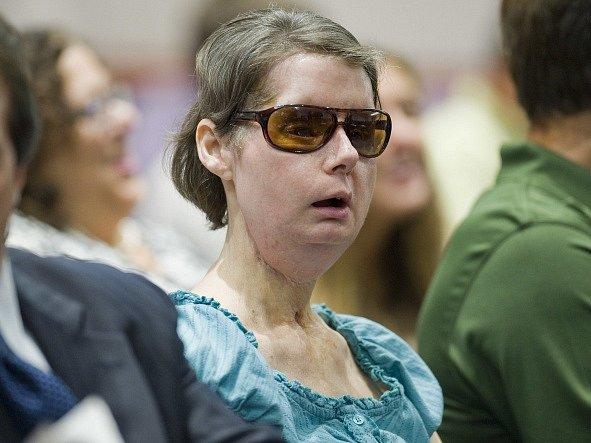 Američanka Charla Nashová, které tým českého chirurga Bohdana Pomahače před pěti lety transplantoval obličej, je zpět v nemocnici v Bostonu.