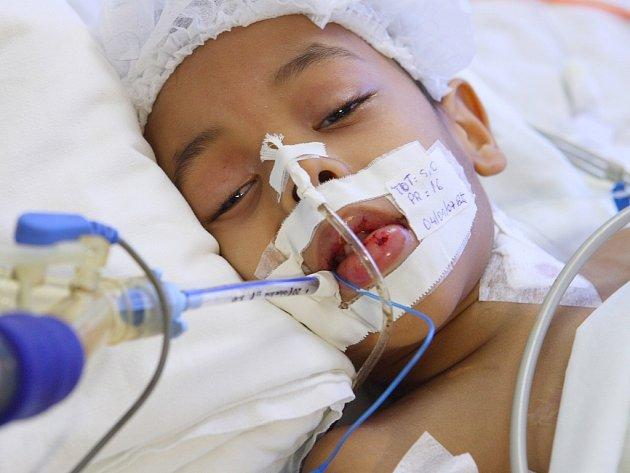 Malý pacient trpící leukémií.