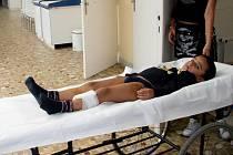 Pětiletý Jakub, kterého pokousal staffordshirský teriér.